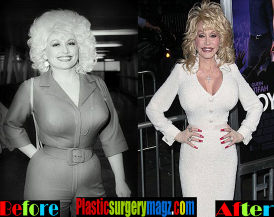Dolly Parton Diet Before and After