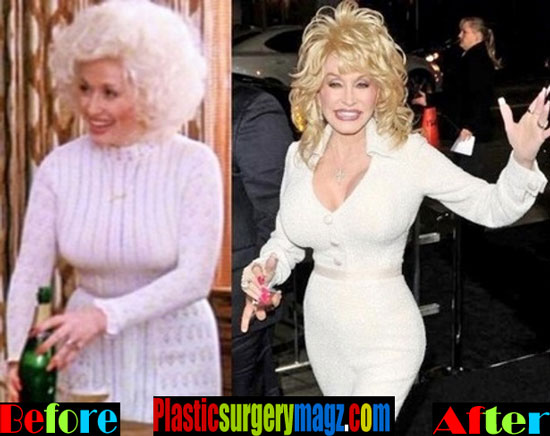 Dolly Parton Weight Loss Diet Before and After