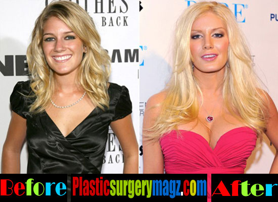 Heidi Montag Boobs Job Before and After