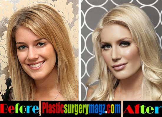 Heidi Montag Nose Job Before and After