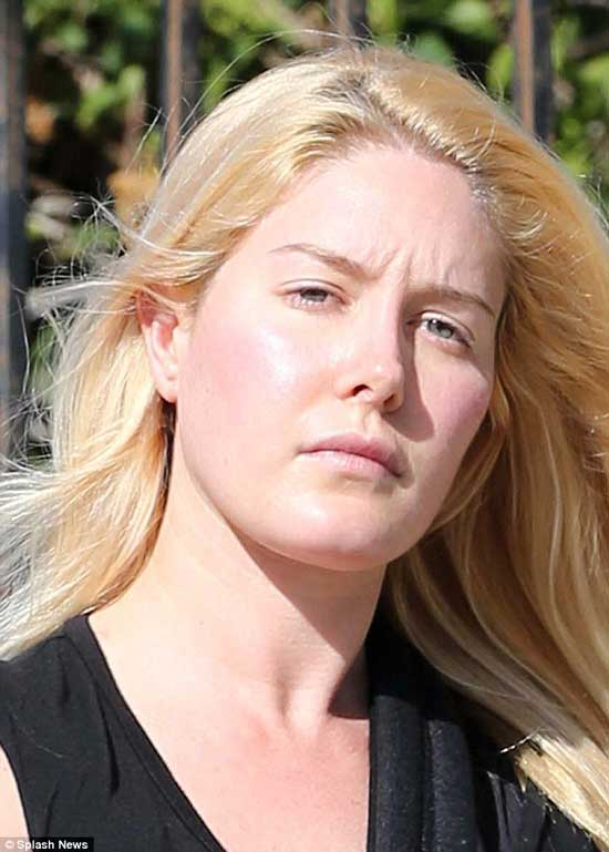 Heidi Montag Plastic Surgery Transformation