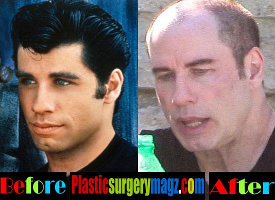 John Travolta Plastic Surgery Before After