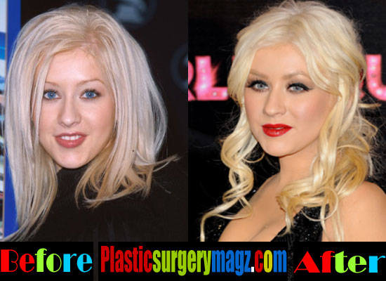 Christina Aguilera Rhinoplasty Before and After