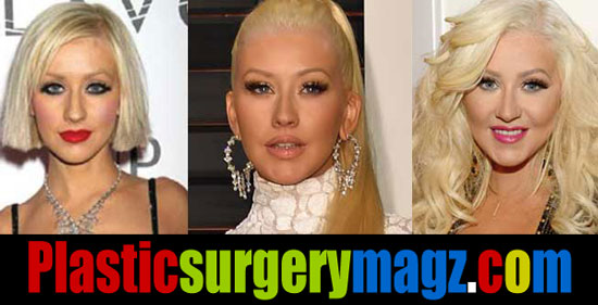 Christina Aguilera Plastic Surgery Face Before and After Pictures
