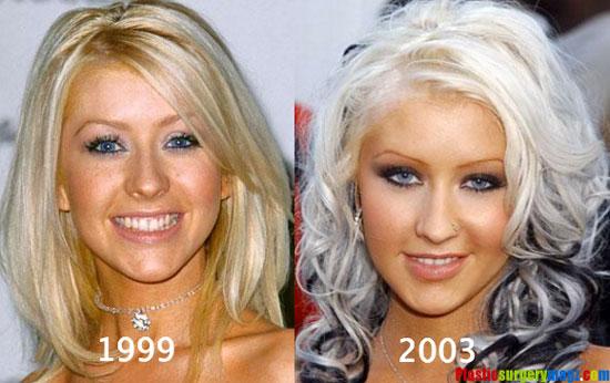 Christina Aguilera Plastic Surgery Photos