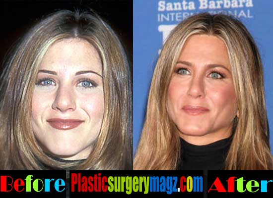Jennifer Aniston Nose Surgery