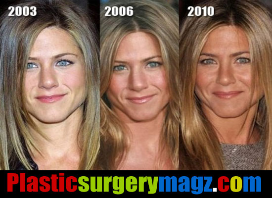 Jennifer Aniston Nose Then And Now