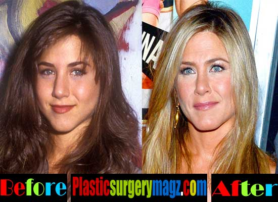 Jennifer Anniston Nose Before And After
