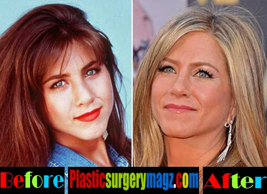 Jennifer Anniston Nose Job Before After