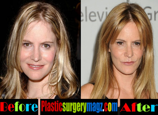 Jennifer Jason Leigh Plastic Surgery Before After Photos