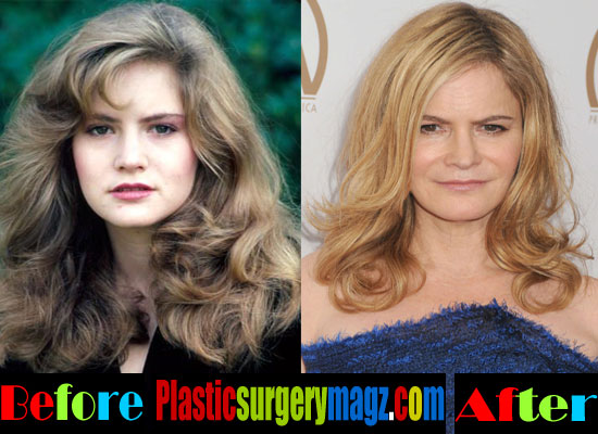 Jennifer Jason Leigh Plastic Surgery Then and Now