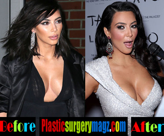 Kim Kardashian Boob Job Before and After