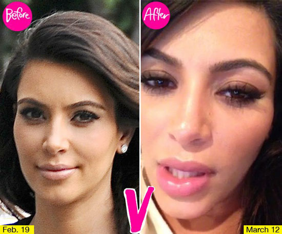 Kim Kardashian Lip Injections Before and After
