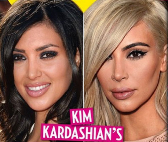 Kim Kardashian Plastic Surgery Now And Then Pictures