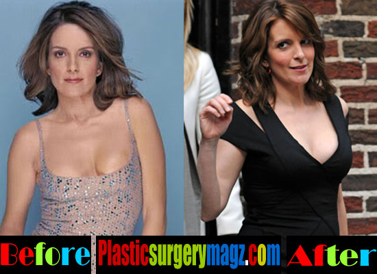 Tina Fey Boobs Job Before and After