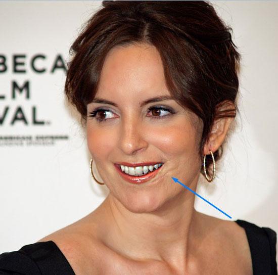 Tina Fey Face Scar