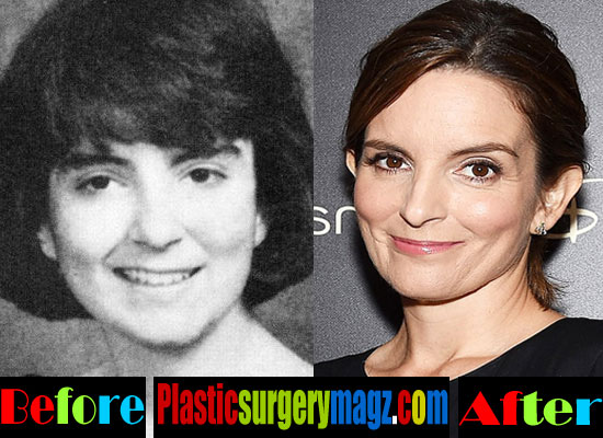 Tina Fey Before and After Pictures