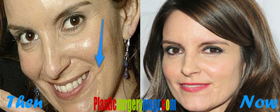 Tina Fey Plastic Surgery Before and After