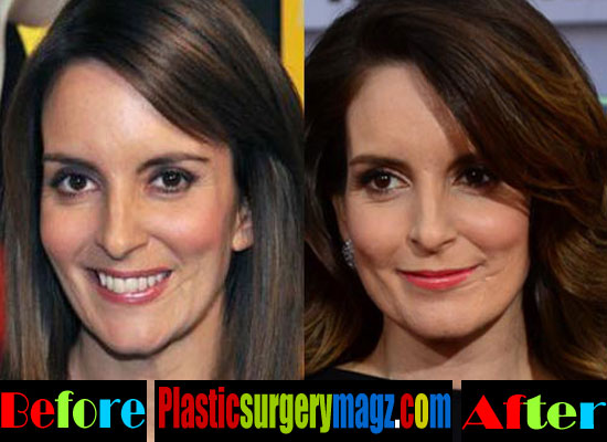 Tina Fey Plastic Surgery Then and Now