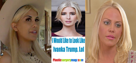 Ivanka Trump Cosmetic Surgery