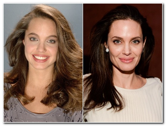 Angelina Jolie Nose Job Before and After