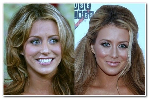 Aubrey O'Day nose job before and after