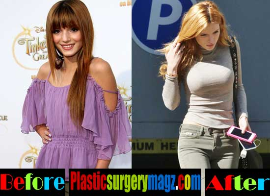 Bella Thorne Boob Job Before and After