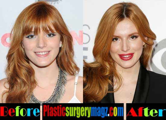 Bella Thorne Plastic Surgery Before After Photos
