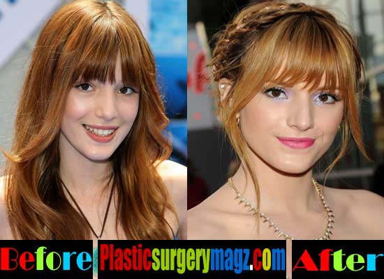 Bella Thorne Plastic Surgery Nose
