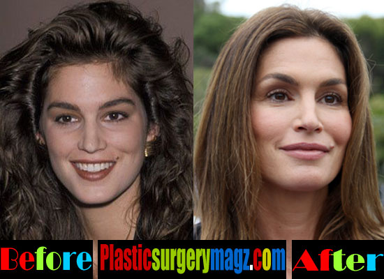 Cindy Crawford Cheek Implants Before and After
