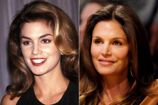 Cindy Crawford Eye Lift Before and After
