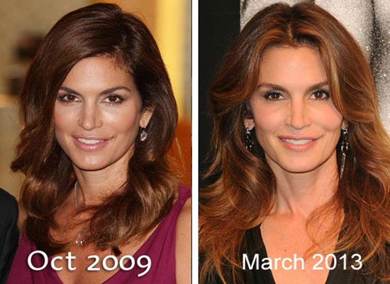 Cindy Crawford Plastic Surgery Now and Then