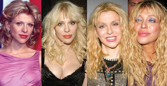 Courtney Love Plastic Surgery Before and After Pictures