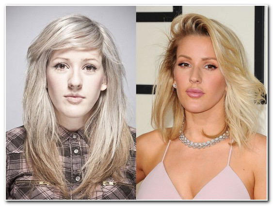 Ellie Goulding Nose Job Before and After