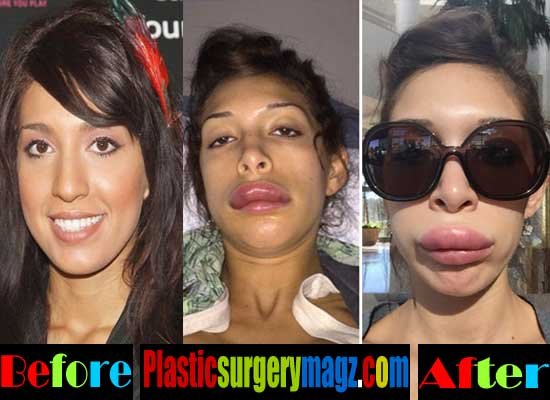 Farrah Abraham Bad Plastic Surgery Lips Before and After
