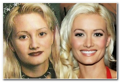 Holly Madison Nose Job Before and After