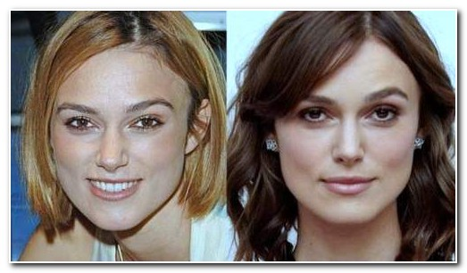 Keira Knightly Nose Job Before and After