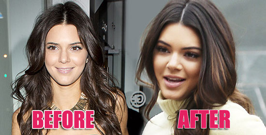 Kendall Jenner Nose Job Before And After