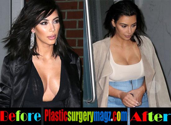 Kim Kardashian Breast Implants