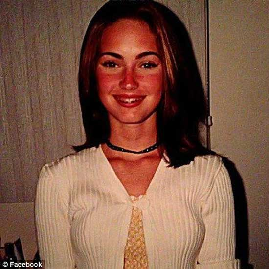 Megan Fox Before Plastic Surgery Transformation
