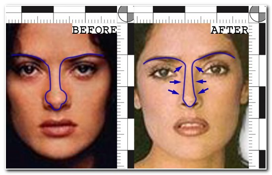 Salma Hayek Nose Job Before and After