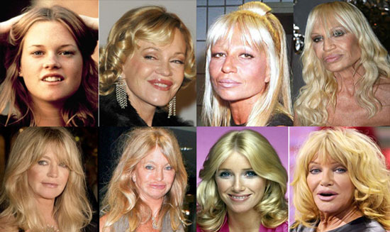 celebrity bad plastic surgery