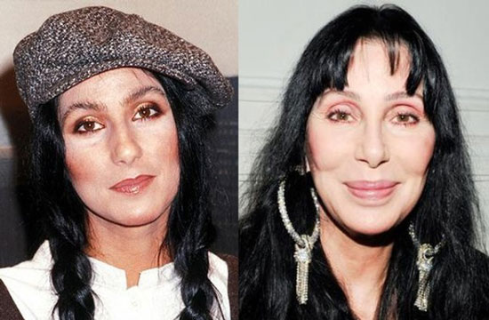 cher bad plastic surgery before and after