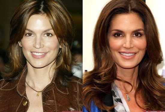 cindy crawford facelift before and after