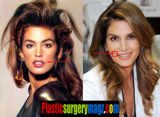 cindy crawford mole pictures