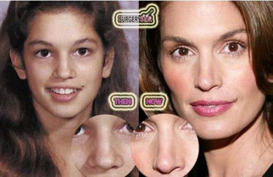 cindy crawford nose job before and after