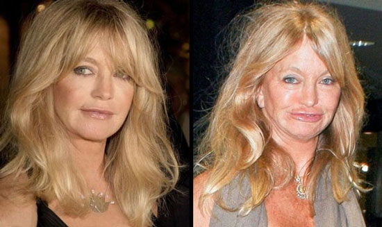 goldie hawn bad plastic surgery