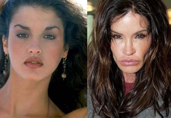 janice dickinson bad plastic surgery before and after