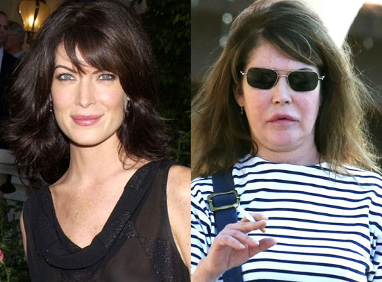 lara flynn boyle bad plastic surgery