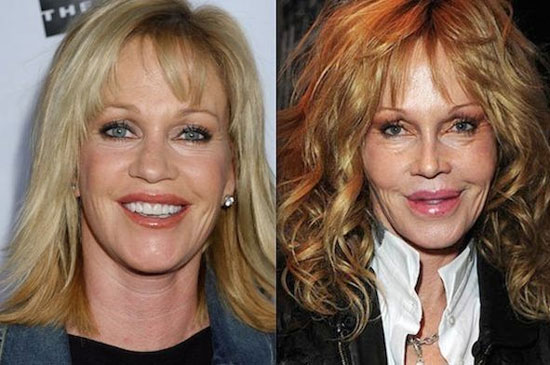 melanie griffith plastic surgery gone wrong
